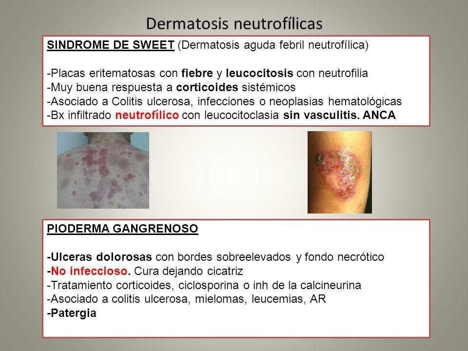 Dermatosis neutrofílicas