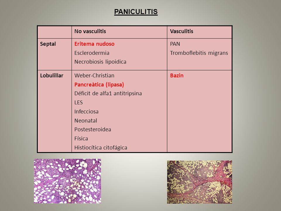 PANICULITIS No vasculitis Vasculitis Septal Eritema nudoso