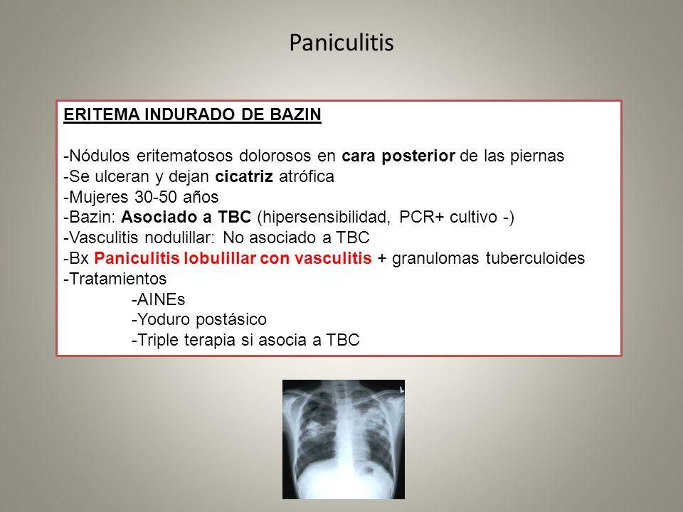 Paniculitis ERITEMA INDURADO DE BAZIN