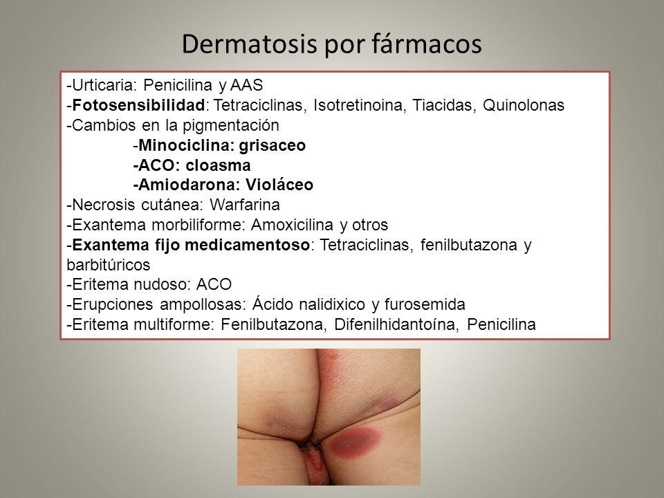 Dermatosis por fármacos
