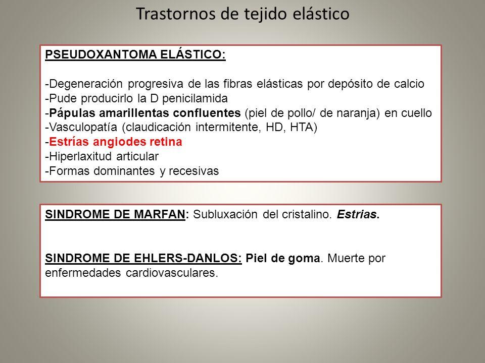 Trastornos de tejido elástico
