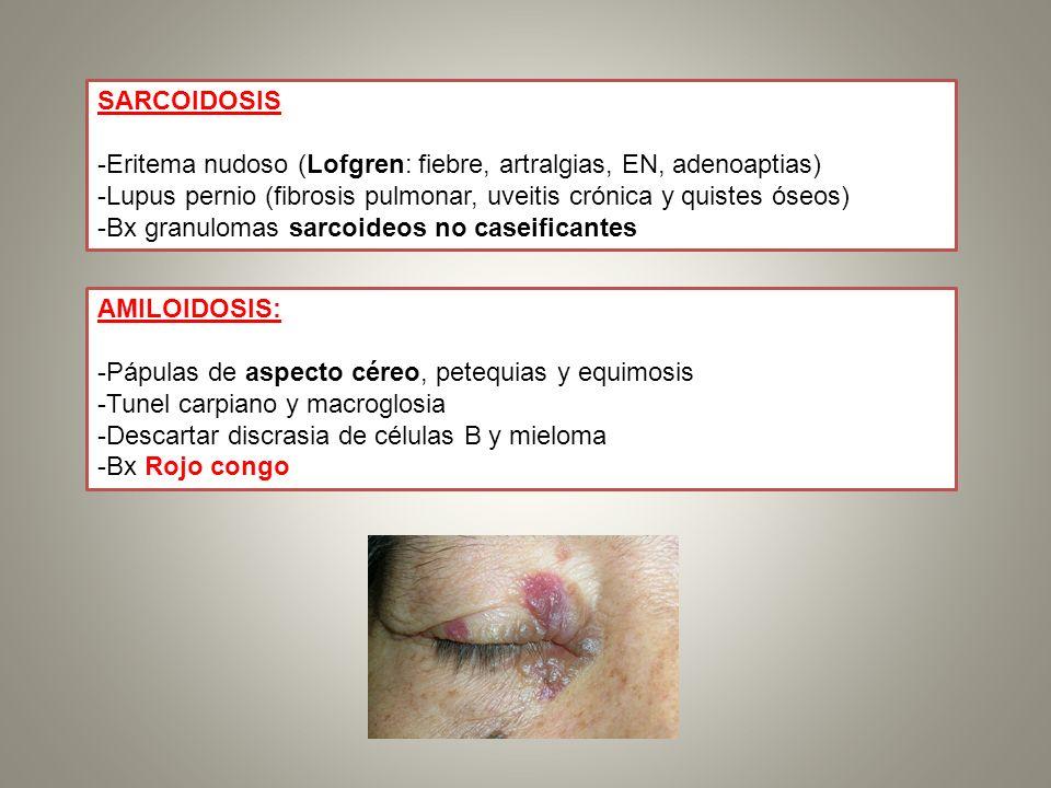 SARCOIDOSIS -Eritema nudoso (Lofgren: fiebre, artralgias, EN, adenoaptias) -Lupus pernio (fibrosis pulmonar, uveitis crónica y quistes óseos)