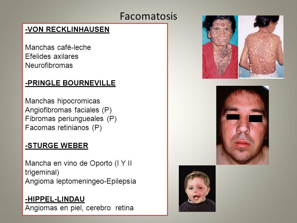 Facomatosis -VON RECKLINHAUSEN Manchas café-leche Efelides axilares