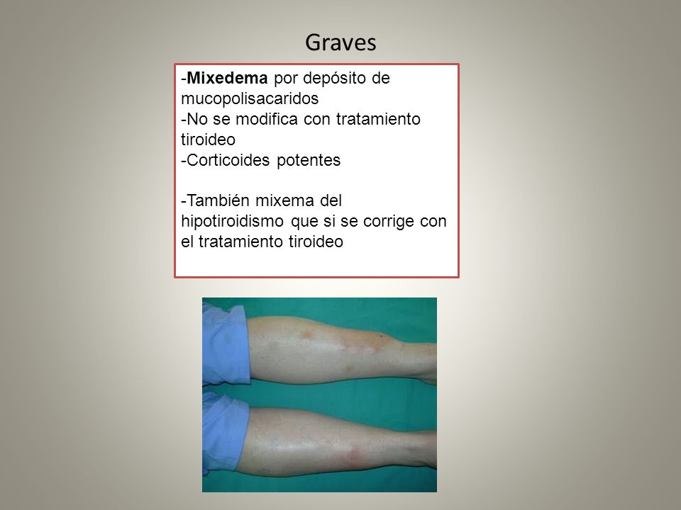 Graves -Mixedema por depósito de mucopolisacaridos