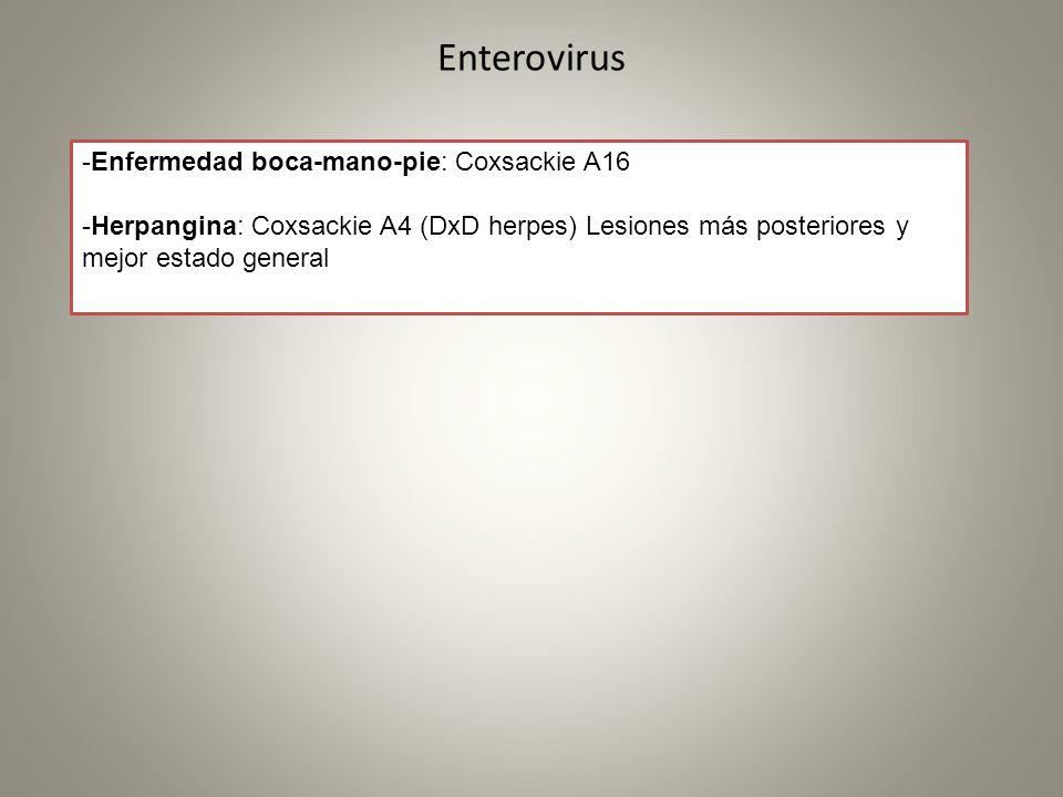 Enterovirus -Enfermedad boca-mano-pie: Coxsackie A16