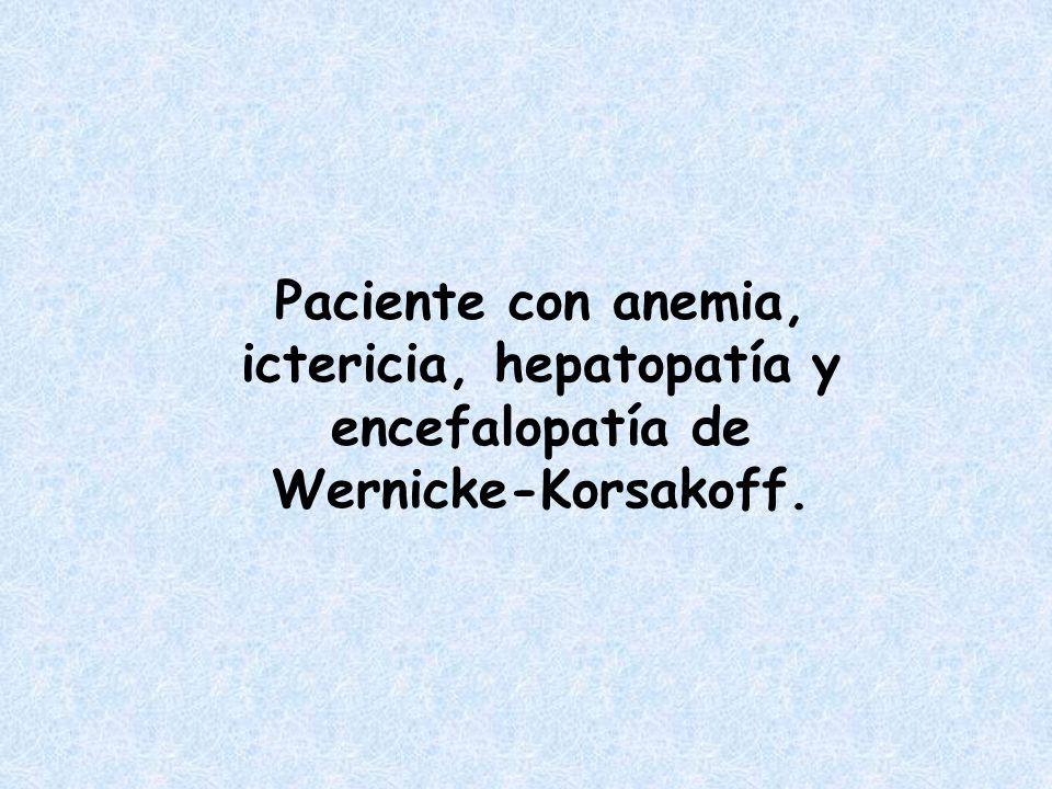 Paciente con anemia, ictericia, hepatopatía y encefalopatía de Wernicke-Korsakoff.