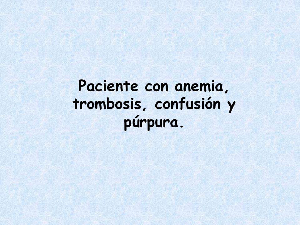 Paciente con anemia, trombosis, confusión y púrpura.