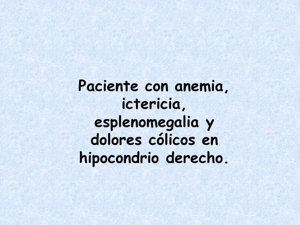 Paciente con anemia, ictericia, esplenomegalia y dolores cólicos en hipocondrio derecho.