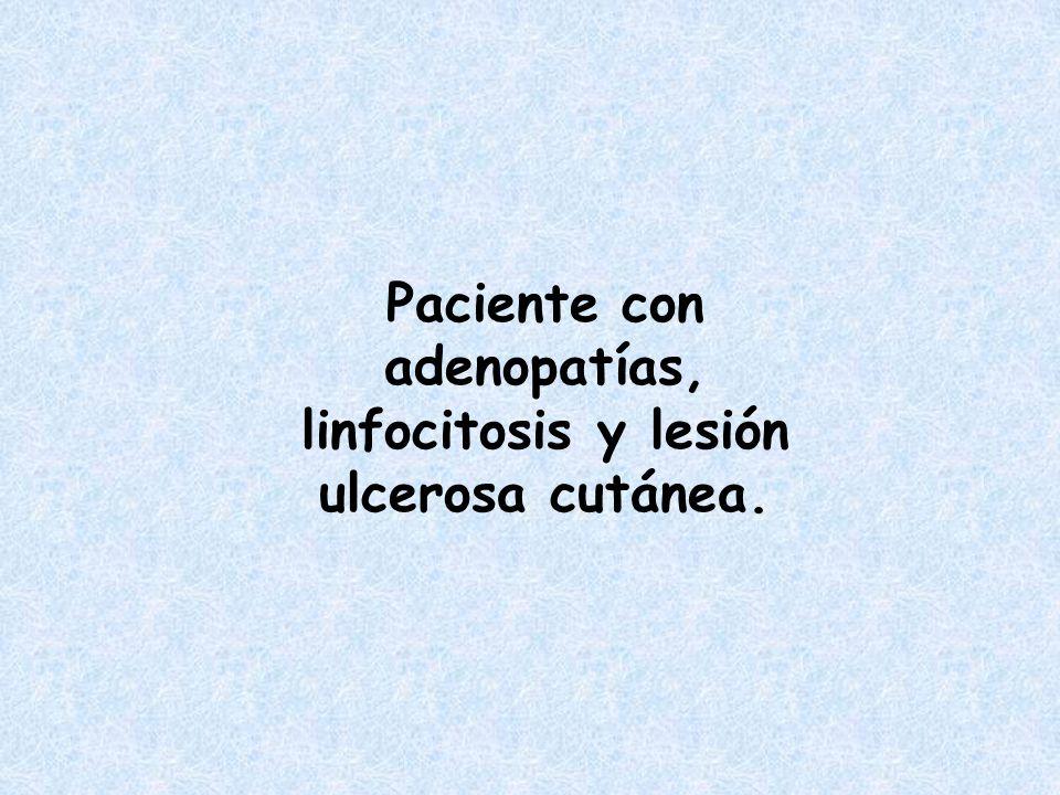 Paciente con adenopatías, linfocitosis y lesión ulcerosa cutánea.
