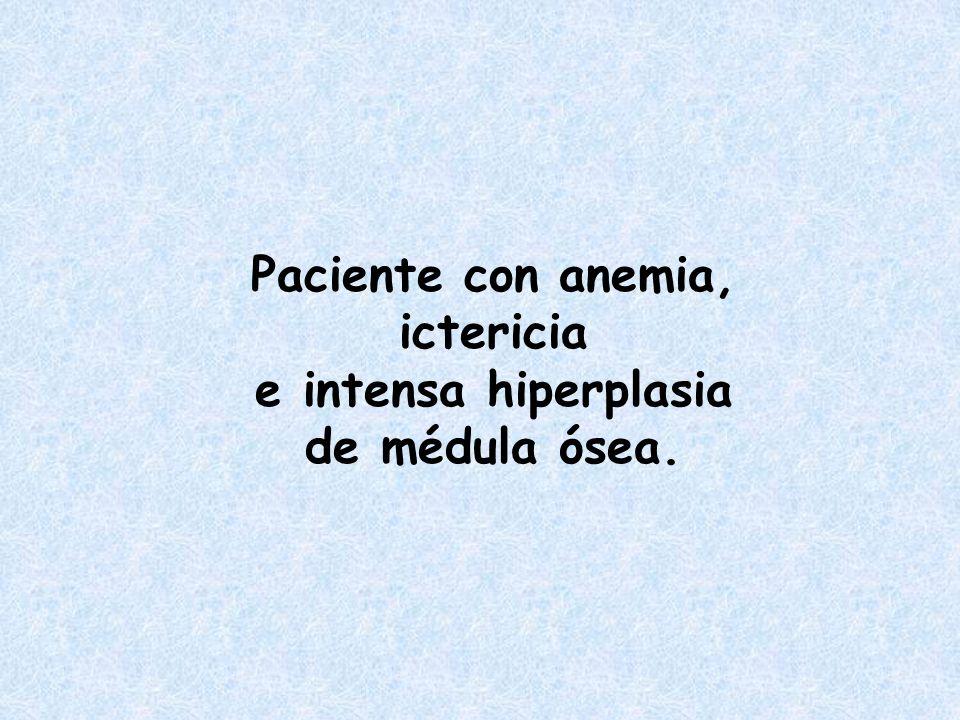 Paciente con anemia, ictericia e intensa hiperplasia de médula ósea.