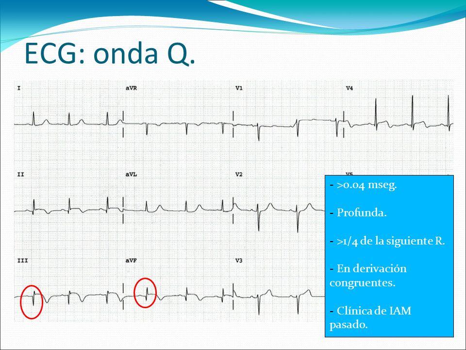 ECG: onda Q. >0.04 mseg. Profunda. >1/4 de la siguiente R.