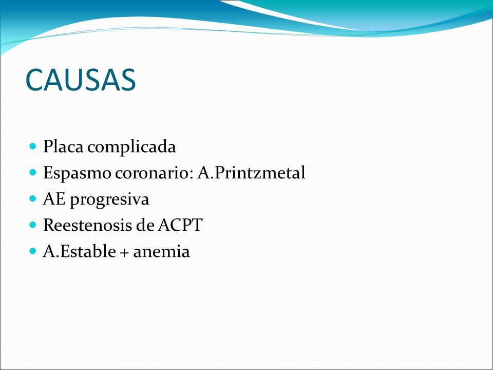 CAUSAS Placa complicada Espasmo coronario: A.Printzmetal AE progresiva