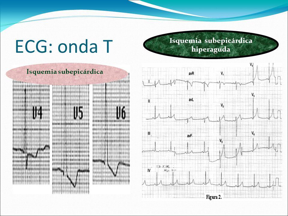Isquemia subepicárdica hiperaguda