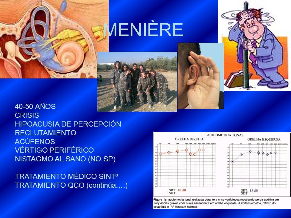 MENIÈRE 40-50 AÑOS CRISIS HIPOACUSIA DE PERCEPCIÓN RECLUTAMIENTO