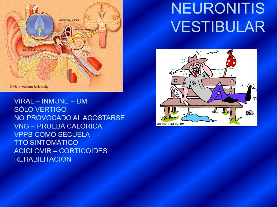 NEURONITIS VESTIBULAR