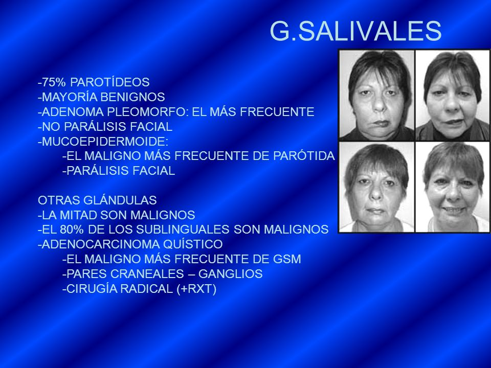 G.SALIVALES 75% PAROTÍDEOS MAYORÍA BENIGNOS