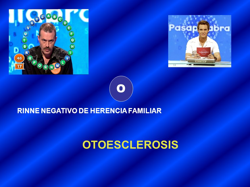 O RINNE NEGATIVO DE HERENCIA FAMILIAR OTOESCLEROSIS