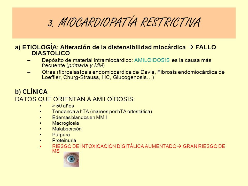 3. MIOCARDIOPATÍA RESTRICTIVA