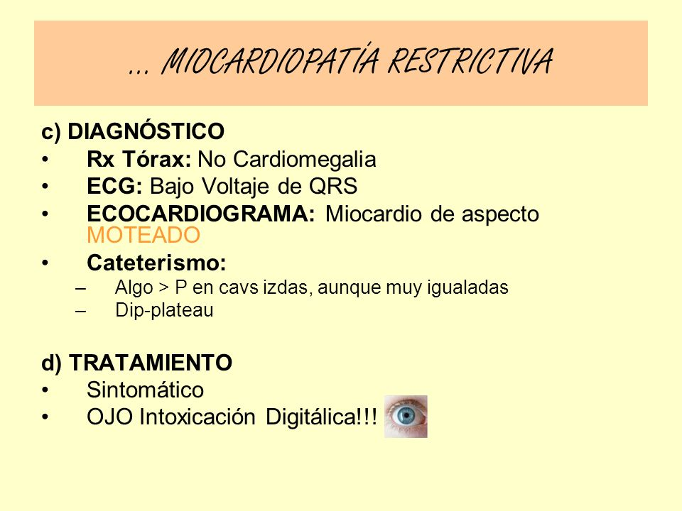 … MIOCARDIOPATÍA RESTRICTIVA