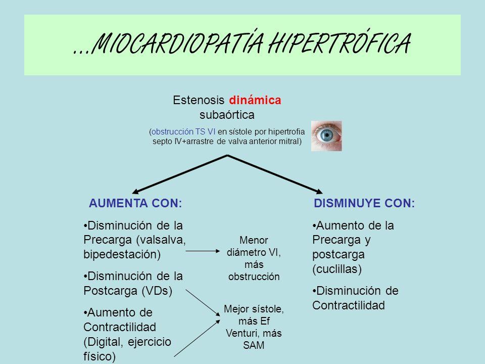 …MIOCARDIOPATÍA HIPERTRÓFICA