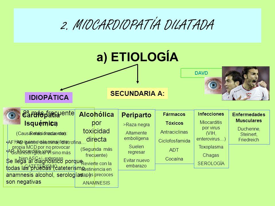 2. MIOCARDIOPATÍA DILATADA