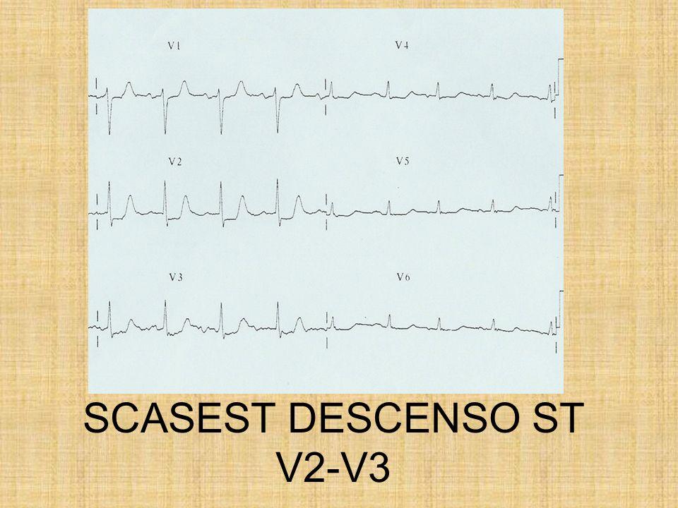 SCASEST DESCENSO ST V2-V3
