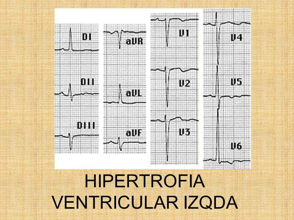 HIPERTROFIA VENTRICULAR IZQDA