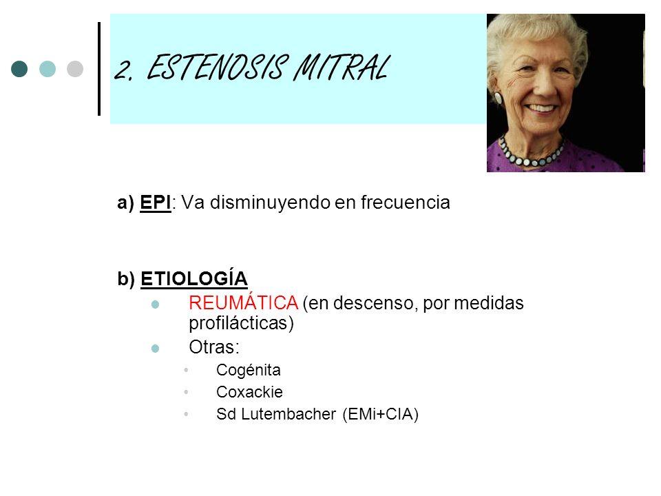 2. ESTENOSIS MITRAL a) EPI: Va disminuyendo en frecuencia b) ETIOLOGÍA
