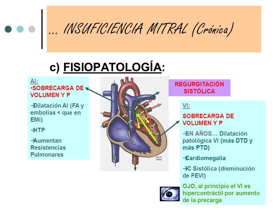 … INSUFICIENCIA MITRAL (Crónica)