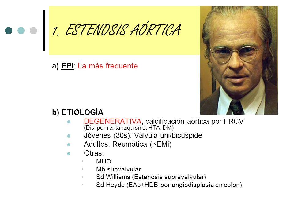 1. ESTENOSIS AÓRTICA a) EPI: La más frecuente b) ETIOLOGÍA