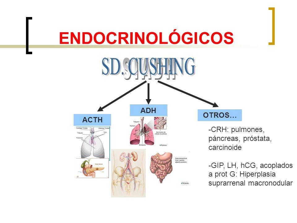 ENDOCRINOLÓGICOS SD. CUSHING SIADH ADH OTROS… ACTH