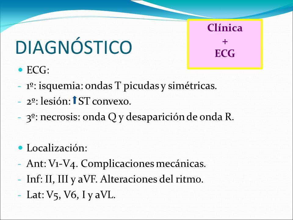 DIAGNÓSTICO Clínica + ECG ECG: