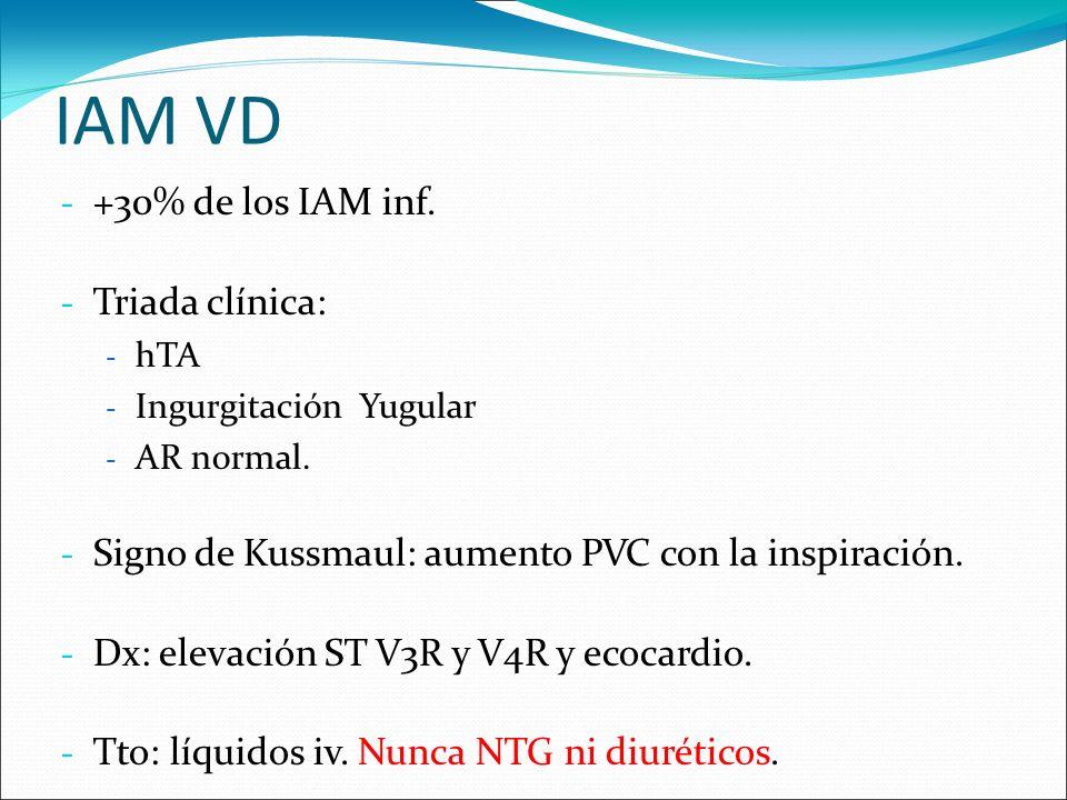 IAM VD +30% de los IAM inf. Triada clínica: