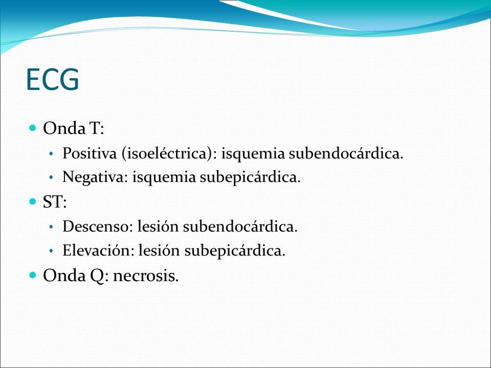 ECG Onda T: ST: Onda Q: necrosis.