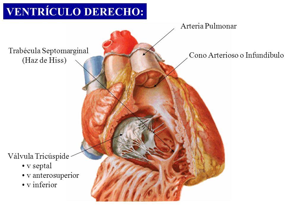 VENTRÍCULO DERECHO: Arteria Pulmonar Trabécula Septomarginal