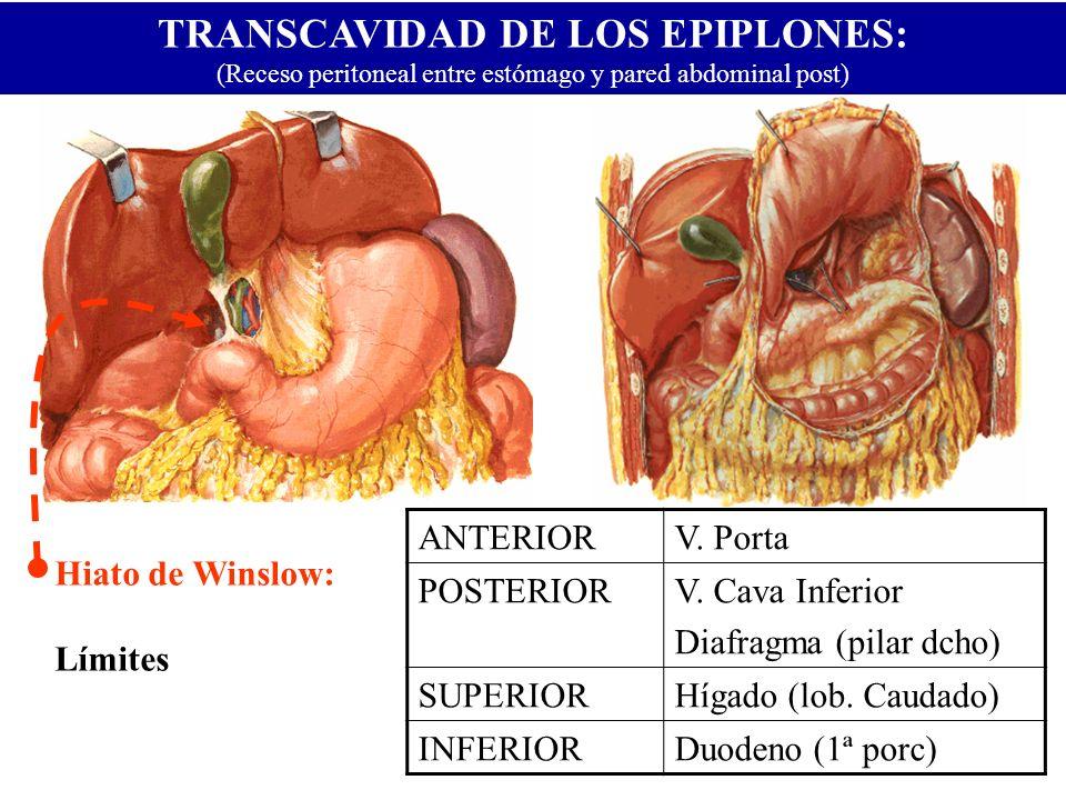 TRANSCAVIDAD DE LOS EPIPLONES: