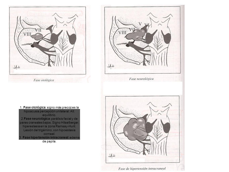 3. Fase hipertensión intracraneal: edema de papila.