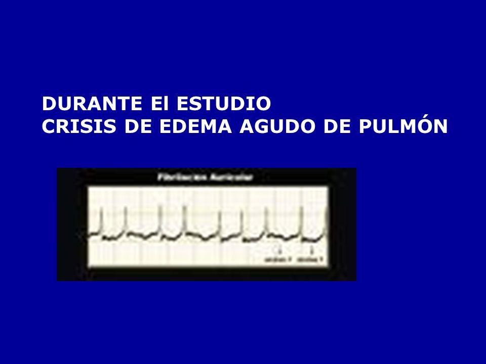 DURANTE El ESTUDIO CRISIS DE EDEMA AGUDO DE PULMÓN