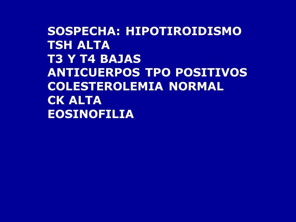 SOSPECHA: HIPOTIROIDISMO