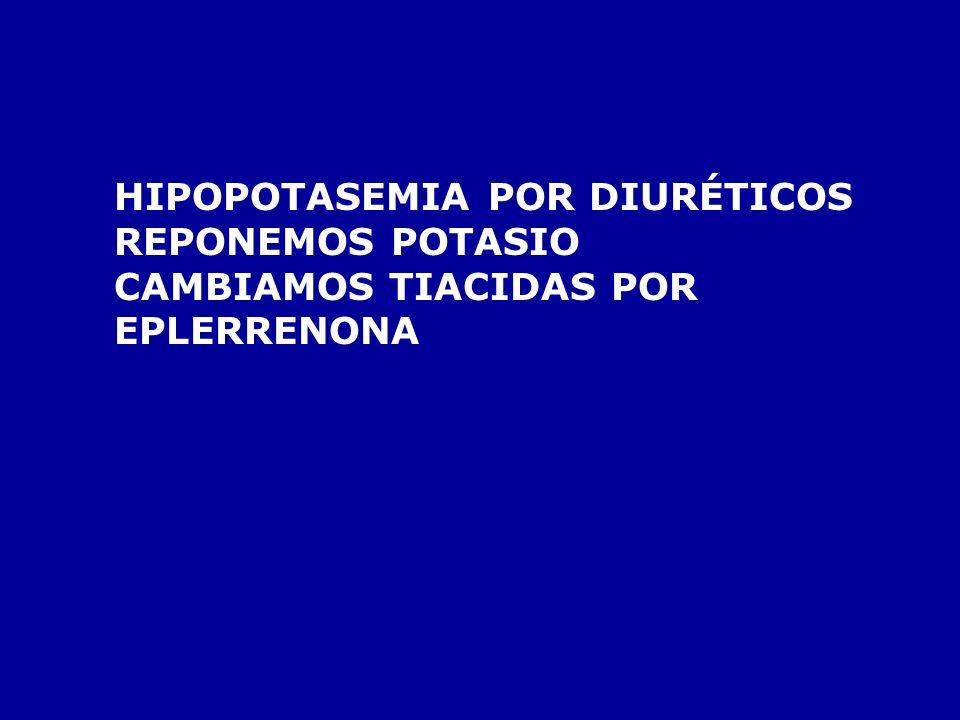 HIPOPOTASEMIA POR DIURÉTICOS