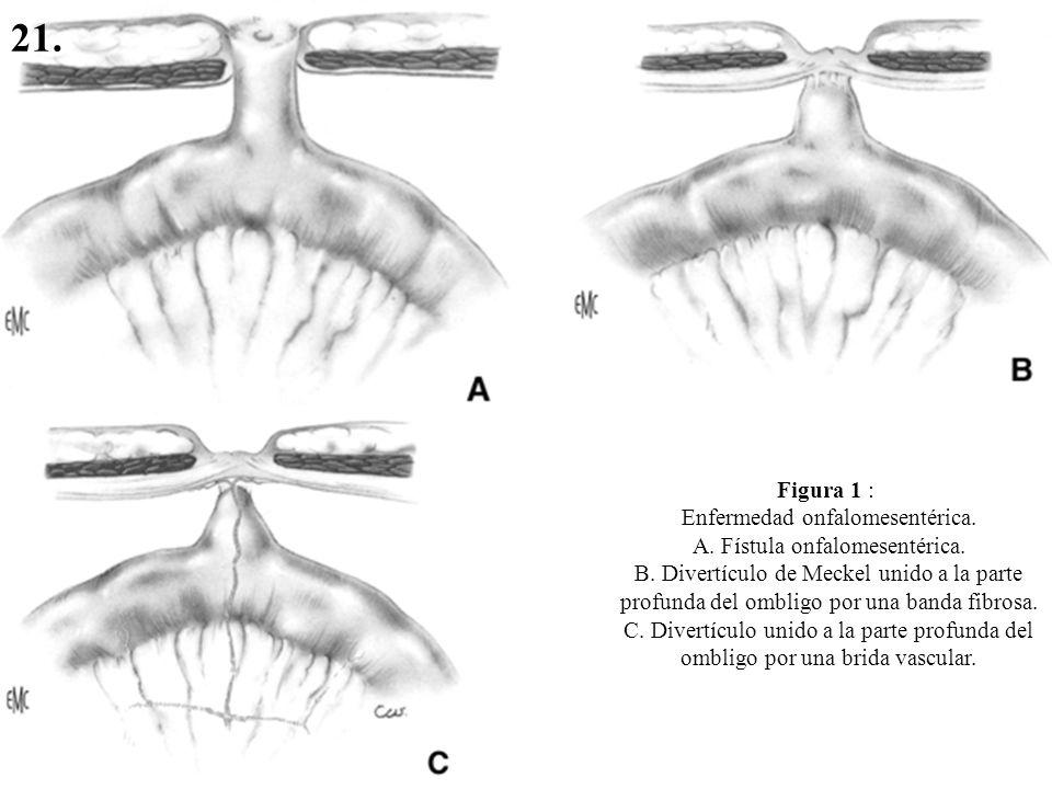 21. Figura 1 : Enfermedad onfalomesentérica.