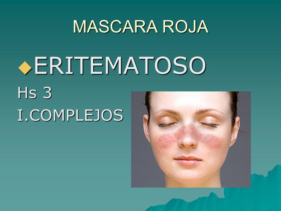MASCARA ROJA ERITEMATOSO Hs 3 I.COMPLEJOS