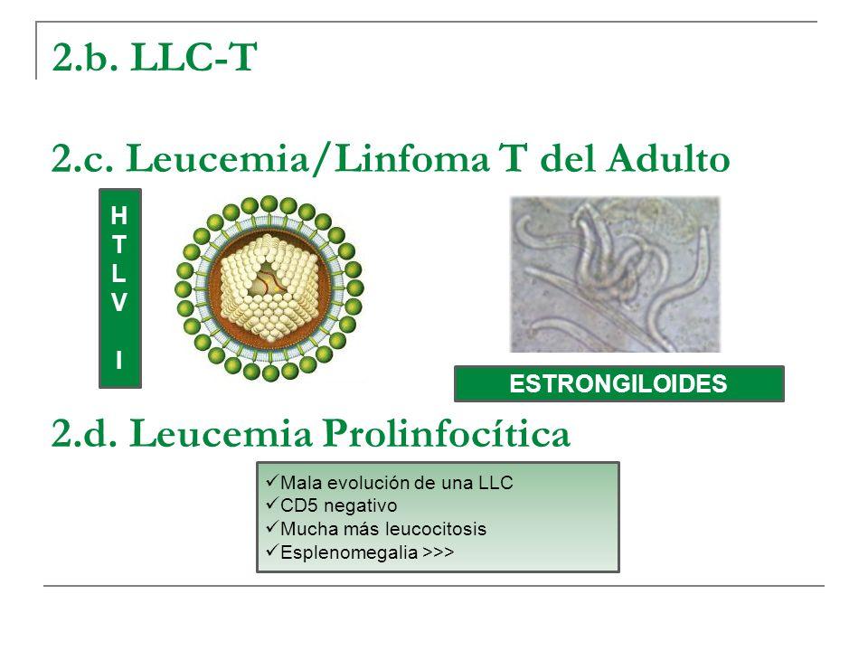 2.c. Leucemia/Linfoma T del Adulto