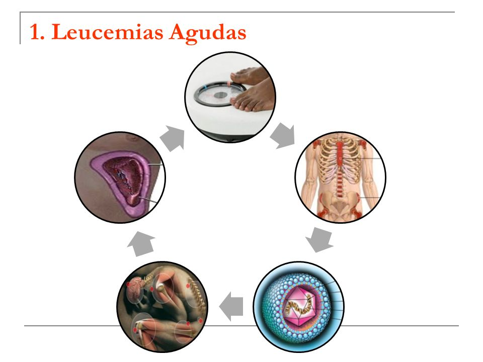 1. Leucemias Agudas