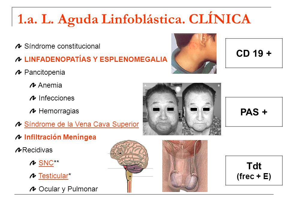 1.a. L. Aguda Linfoblástica. CLÍNICA