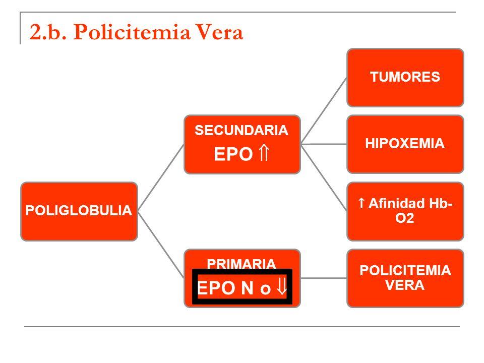 2.b. Policitemia Vera EPO N o  EPO  SECUNDARIA PRIMARIA POLIGLOBULIA