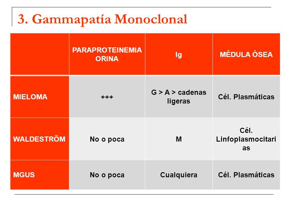 3. Gammapatía Monoclonal