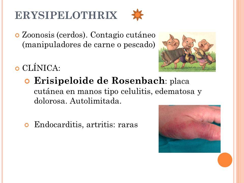 ERYSIPELOTHRIX Zoonosis (cerdos). Contagio cutáneo (manipuladores de carne o pescado) CLÍNICA: