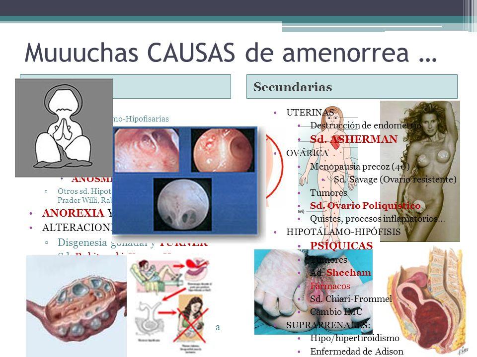 Muuuchas CAUSAS de amenorrea …