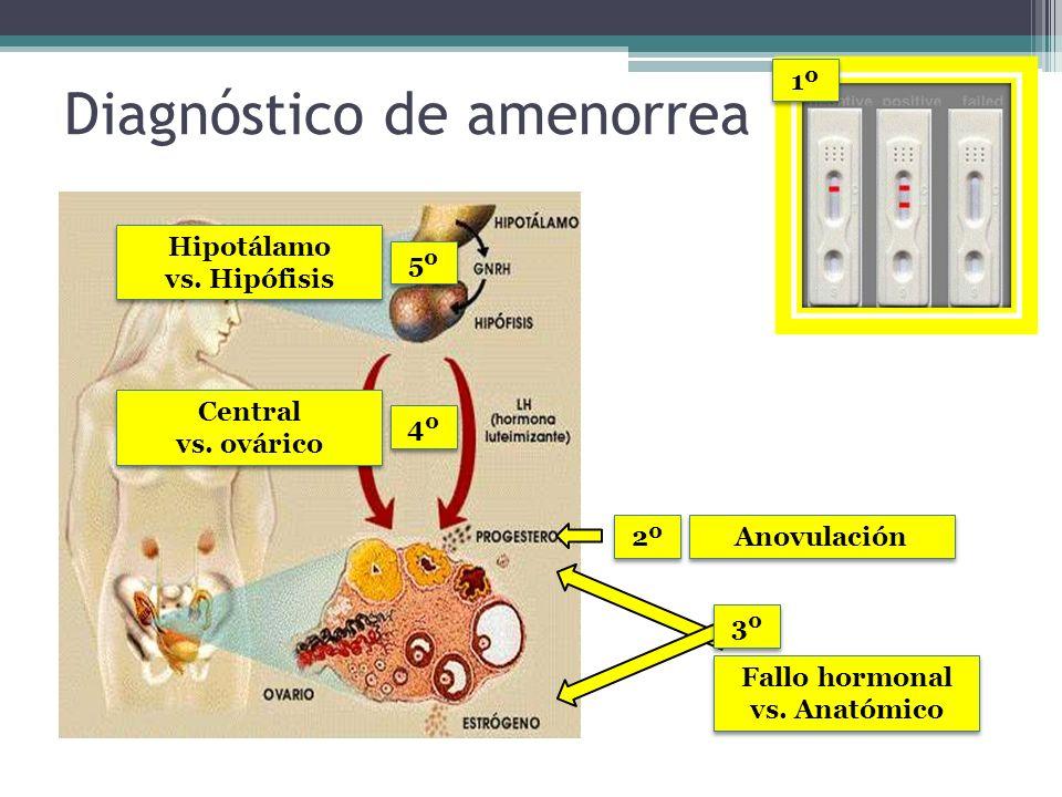 Diagnóstico de amenorrea